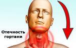 Ингаляции при ларингите небулайзером эффективные препараты