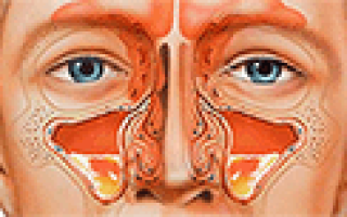 Диоксидин: состав, обзор инструкции и отзывов о применении лекарства, аналоги препарата, показания, лечение при гайморите, ангине, как хранить лекарство