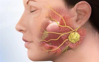 Фолликулярная ангина — лечение и симптомы болезни