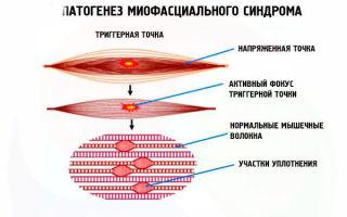 Боль в грудной клетке справа при вдохе и движении