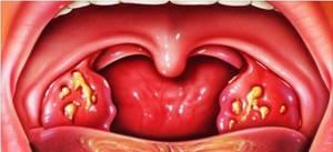 Гнойная ангина – лечение в домашних условиях