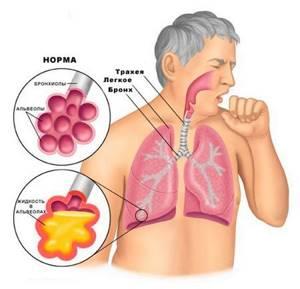 Как избавиться от мокроты: как вывести из бронхов и легких, как лечить кашель и горло у взрослого, какие ингаляции можно делать, лекарства, таблетки, народные средства