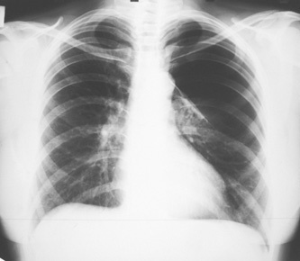 Буллезная болезнь легких – что это такое, ее симптомы и лечение
