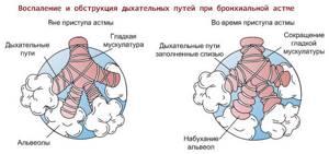 Берут ли в армию с астмой: возьмут ли служить в Вооруженные силы, в органы МВД, как вести себя в военкомате