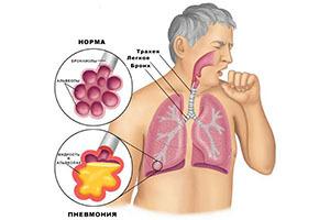 Боль в грудной клетке при вдохе, дыхании, выдохе: причины, что делать?