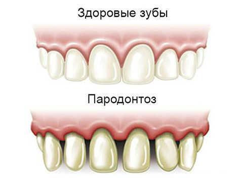 Можно ли полоскать рот перекисью водорода, отзывы