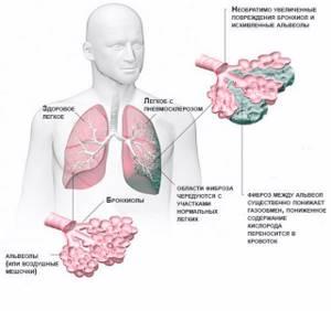Пневмофиброз легких: что это такое и как лечить, симптомы болезни