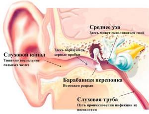 Болит горло и ухо: с одной стороны, справа, слева