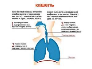 Лечение кашля на ранних сроках беременности