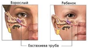 Чем промывать нос при гайморите: как это делать правильно и как часто, Долфин, Фурацилин, солевой раствор, народные средства, процедура кукушка, обзор отзывов