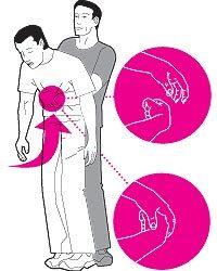 Механическая асфиксия: виды, признаки, оказание первой помощи
