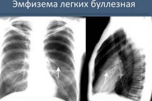 Эмфизема легких – прогноз жизни