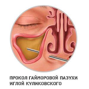 Прокол при гайморите: как делают пункцию пазухи, техника выполнения, обзор отзывов о процедуре, последствия, плюсы и минусы, больно ли это, реабилитация