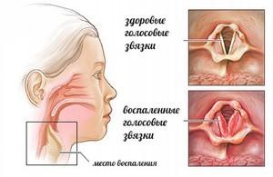 Ларинготрахеит у детей: симптомы, лечение, виды