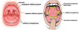 Тонзиллит — симптомы, виды и лечение