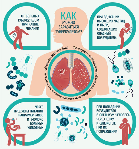 Как передаётся туберкулёз закрытой формы