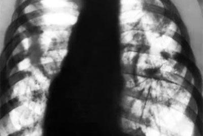 Затемнение в легких на флюорографии, усиление легочного рисунка, причины, что это может быть?