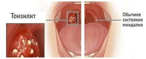 Стрептококк в горле: симптомы и лечение