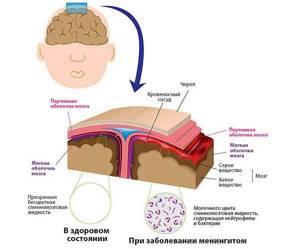 Симптомы менингита: вирусное и бактериальное воспаление у взрослых и детей, как распознать, сыпь, температура, менингеальные признаки, как болит голова