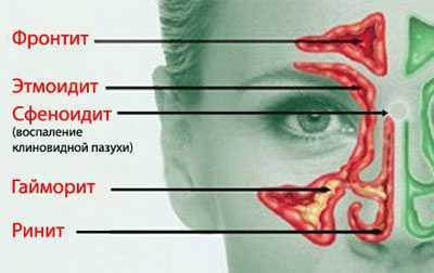 Хлорофиллонг для полоскания горла: инструкция, как разбавить, аналоги