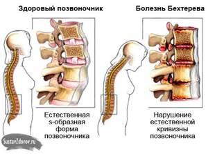 Боль в грудной клетке слева: при вдохе, выдохе, дыхании и при движении
