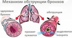 Обструктивный бронхит — что это, симптомы и лечение у взрослых