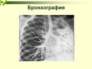 Бронхография: описание метода, показания и противопоказания, алгоритм подготовки пациента, как проводится процедура, что такое воздушная бронхограмма