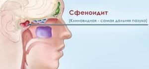 Сфеноидит что это такое, симптомы и лечение болезни