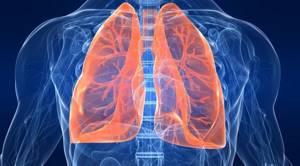 Что такое пневмония и чем она опасна?