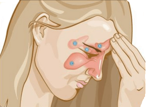 Синусит — что это такое, симптомы и диагностика