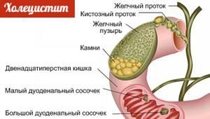 Колет в грудной клетке: справа, слева, посередине, при вдохе, что это?