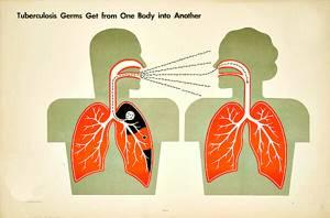 Как передается туберкулез открытой формы?