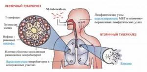 Первые признаки туберкулеза легких на ранних стадиях