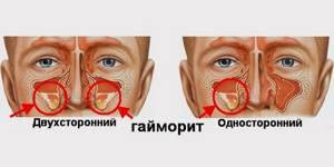 Первые признаки гайморита у взрослых