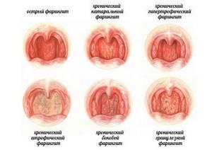 Фарингит: что это такое, причины, симптомы и признаки, грибковый, гонококковый, гипертрофический и другие виды, острая и хроническая форма, диагностика и лечение