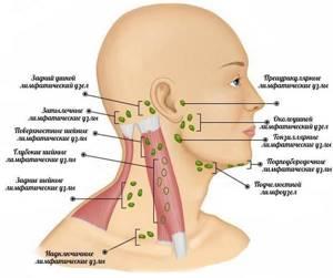 Опухли лимфоузлы на шее: справа, слева, что делать?