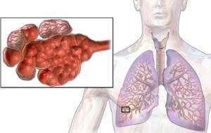 Эмфизема легких: лечение народными средствами