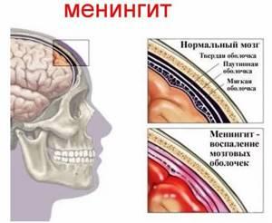 Двухсторонний гайморит: острая и хроническая гиперпластическая форма, признаки, лечение у взрослого и ребенка, к каким последствиям приводит