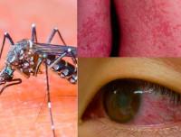 Вирус лихорадки Зика симптомы и лечение