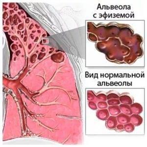 Хроническая эмфизема легких: симптомы и виды лечения болезни