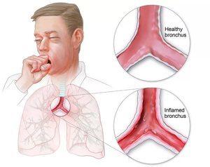 Бронхиолит: что это такое, симптомы у детей и взрослых в острой инфекционной форме, клинические рекомендации по лечению, хроническое течение, народные средства