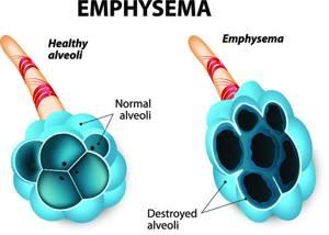 Буллезная эмфизема легких – что это такое, причины, симптомы, лечение