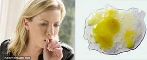 Желтая мокрота при кашле: что означают цвета, если откашливается без температуры у взрослого, по утрам, у ребенка, при бронхите