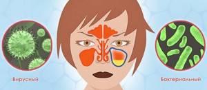 Хронический гайморит – симптомы и лечение у взрослых