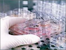 Почему люди умирают от свиного гриппа a (h1n1)