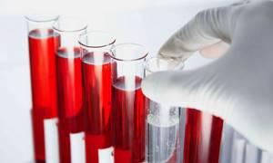 Квантифероновый тест на туберкулез: что это и где сделать?