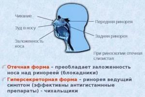Аминокапроновая кислота в нос: можно ли ее капать и использовать для промывания при насморке, обзор отзывов и инструкции по применению