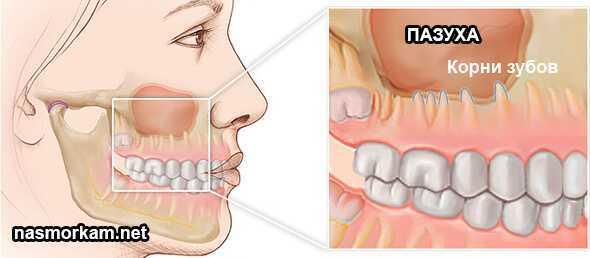 Одонтогенный гайморит: симптомы, лечение, антибиотики, народные средства, чем опасен, перфорация пазухи после удаления зуба