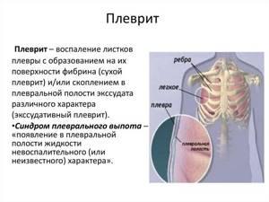 Боль в грудине справа: причины у женщин, мужчин