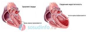 Сердечная астма: причины, симптомы, дифференциальная диагностика и отличительные признаки, лечение, неотложная помощь при приступе, препараты, народные средства